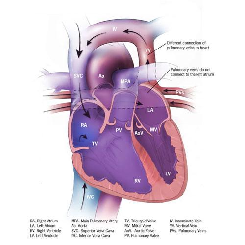 Partial Anomalous Pulmonary Venous Return